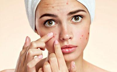 Acne Home Treatment 101