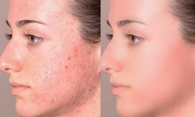 تبييض بشرة الوجه