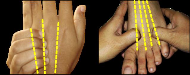 puncte acupunctura pentru slabit