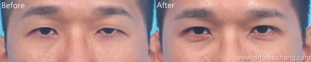 大小眼提眼肌手術台中推薦-ptosis04