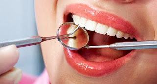 A good dental cleaning