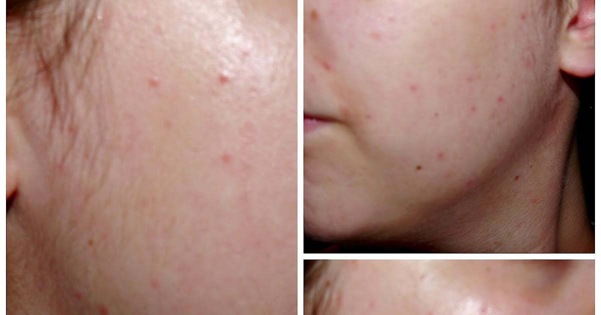 Proactiv // 30 Day Skin Care Challenge Update
