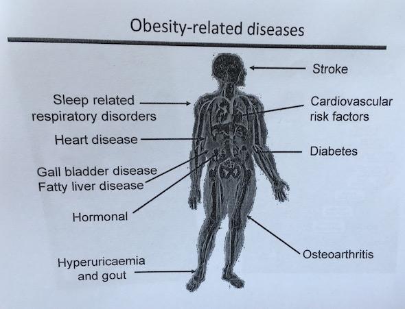 Mari Bergerak Lawan Obesitas Dengan Germas dan Gentas