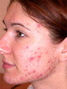 hudmottagning sahlgrenska göteborg