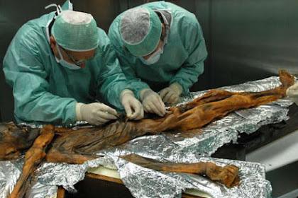 Terungkap Makanan Terakhir Mumi Otzi yang Berumur 5.300 Tahun