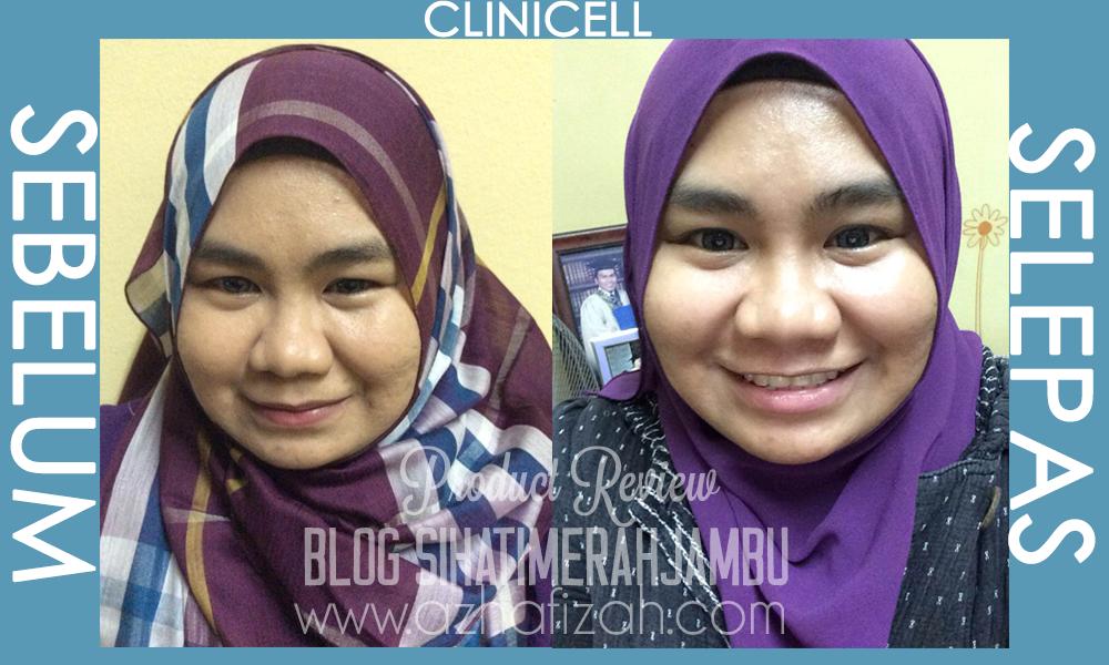 Sebelum dan selepas clinicell