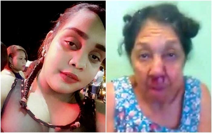 Arrestan joven que agredió a su abuela en Barahona