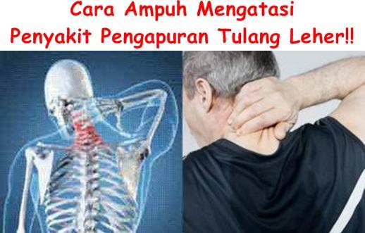 Obat Pengapuran Tulang Leher