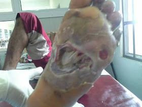 DIABETIC FOOT ULCER before treatment