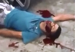 Agoniza Después de un Disparo en la Cara