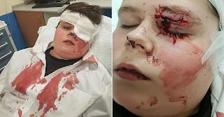 Νταήδες «σάπισαν στο ξύλο» 15χρονο μαθητή και του έσπασαν τα γυαλιά στο πρόσωπο για να σπάσουν πλάκα