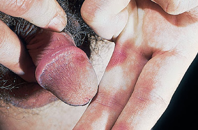 Fixed drug eruption, with sharply demarcated erythematous lesions of the glans penis and finger web in a patient treated with doxycycline for chlamydial infection