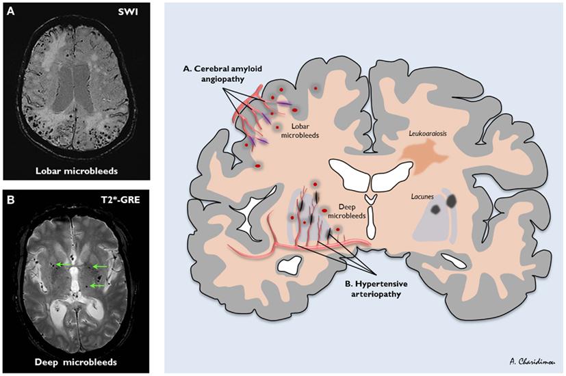 図:微小脳出血