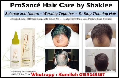 rambut gugur, rawatan rambut gugur, serum untuk rambut, syampu rambut gugur
