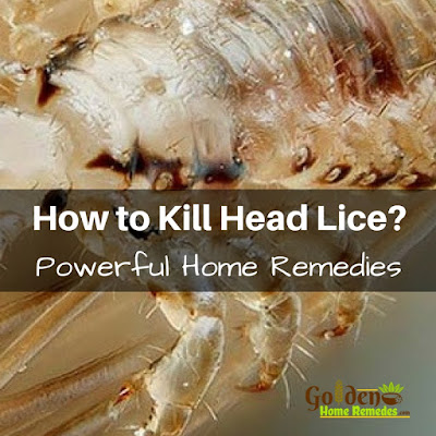 Coconut Oil For Lice, Coconut Oil For Head Lice, Coconut Oil Head Lice, Is Coconut Oil Good For Head Lice, Head Lice Treatment, How To Get Rid Of Head Lice, How To Get Rid Of Hair Lice, Home Remedies For Head Lice,