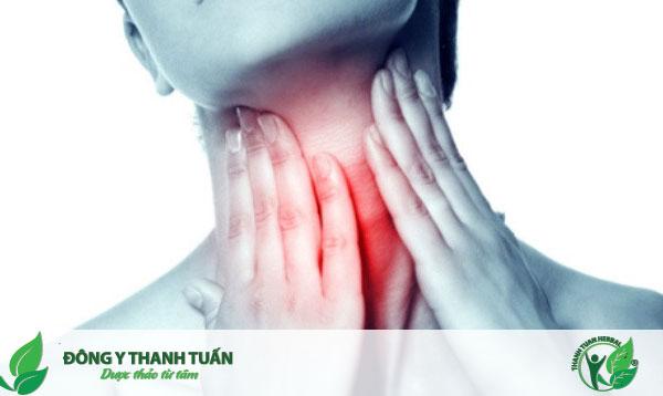 Họng sưng đau là một triệu chứng của viêm amidan cấp tính