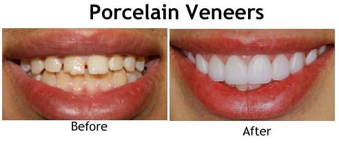 Porcelain Veneer