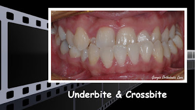 Underbite treatment, no jaw surgery, non extraction, class III, crossbite, Orthodontics, orthodontists, Clear, Invisible, Braces, Invisalign, underbite,class III, face mask, non-surgery, non-extraction, crossbite, overbite, class II, crooked, spaced, crowding, teeth, severe, jaw alignment, cosmetics, implants, children, dentists, dentistry, friendly, adults, children, family, Lawrenceville, Norcross, Buford, Hamilton Mill, Dacula, Auburn, Sugar Hill, Sugar Loaf, Doraville, Chamblee, Stone Mountain, Decatur, Collins Hill, Snellville, Suwanee, Grayson, Lilburn, Duluth, Cumming, Alpharetta, Marietta, Dekalb, Gwinnett, County, Atlanta, North Georgia, GA, Georgia, 30043, 30093, affordable, Vietnamese, Spanish, weekend, Saturday, appointments, Dr. Quang Nguyen, Georgia Orthodontic Care, Nguyen Orthodontics.