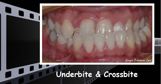 Underbite & Unilateral Crossbite Treatment Video, Georgia Orthodontic Care, Lawrenceville, 30043