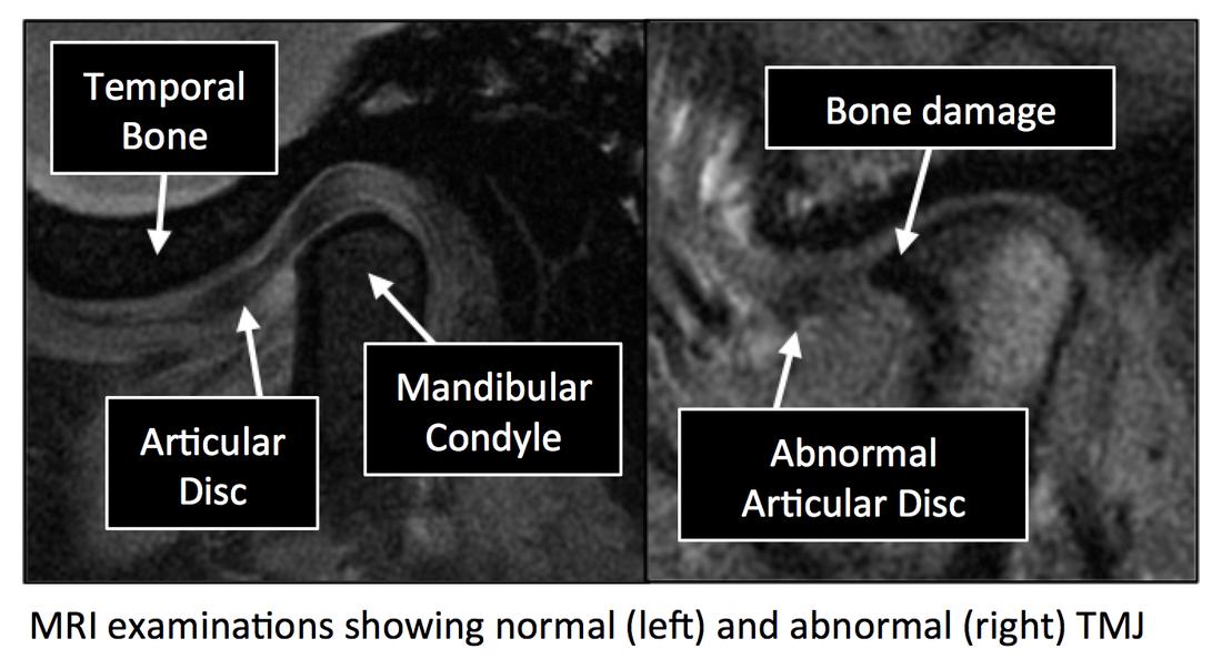 Radiology Anatomy Images Temporomandibular Joint Mri Anatomy