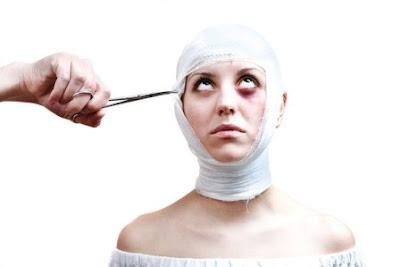 Căng da mặt không cần phẫu thuật khiến khuôn mặt trở nên biến dạng