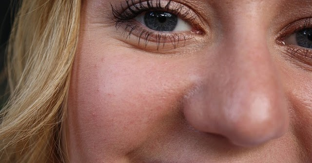 Get Rid Of Lines Under Eyes Naturally