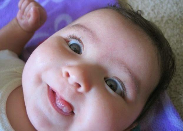 Bébé fille qui louche d'un oeil