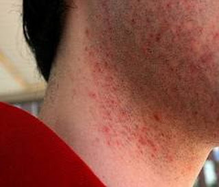 HIV rash usually found in the facial area particularly in the neck and cheek hiv rash images