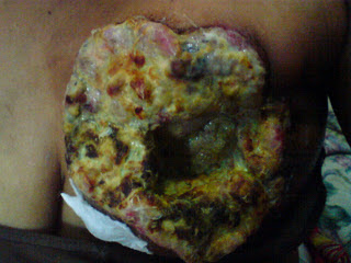 Obat Alami Kanker Payudara Murah