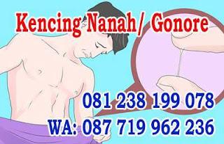 Jual Obat Kencing Nanah Di Cilacap Jawa Tengah