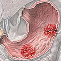 Cara ampuh mengatasi penyakit lambung kronis