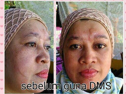 Testimoni Pengguna DMS360. Selamat Tinggal Wajah Kusam dan Bermasalah