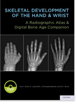 You Can See How The Bones Of Youngest Hand On Left Are Very Diffe From Those In Right