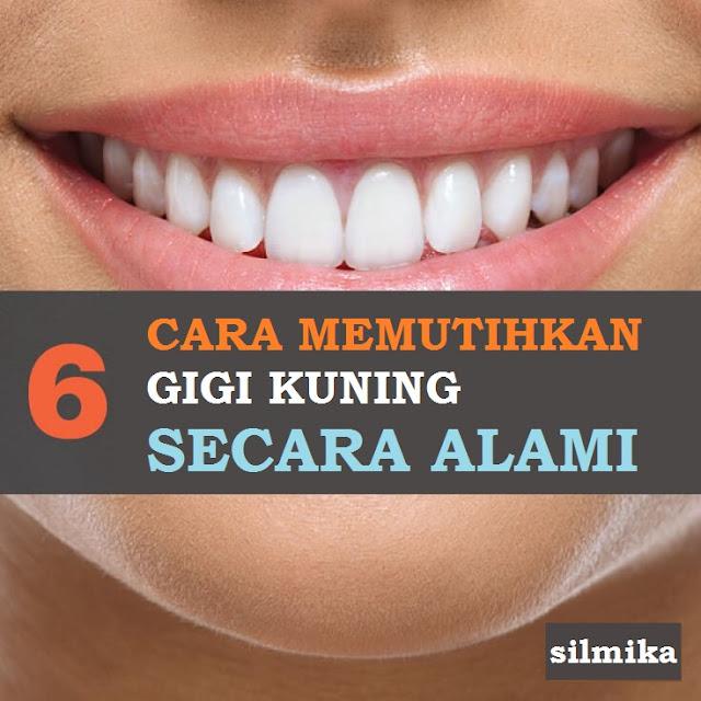 cara memutihkan gigi yang kuning secara alami