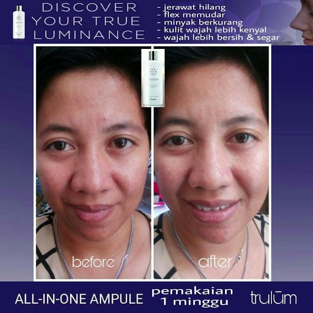 Makin Cantik atau Ganteng Tanpa Harus Ke Dokter Kecantikan di Walaik Jayawijaya