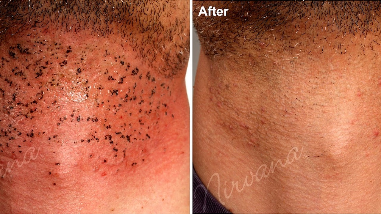 Brazilian Laser Hair Removal Side Effects Effect Choices