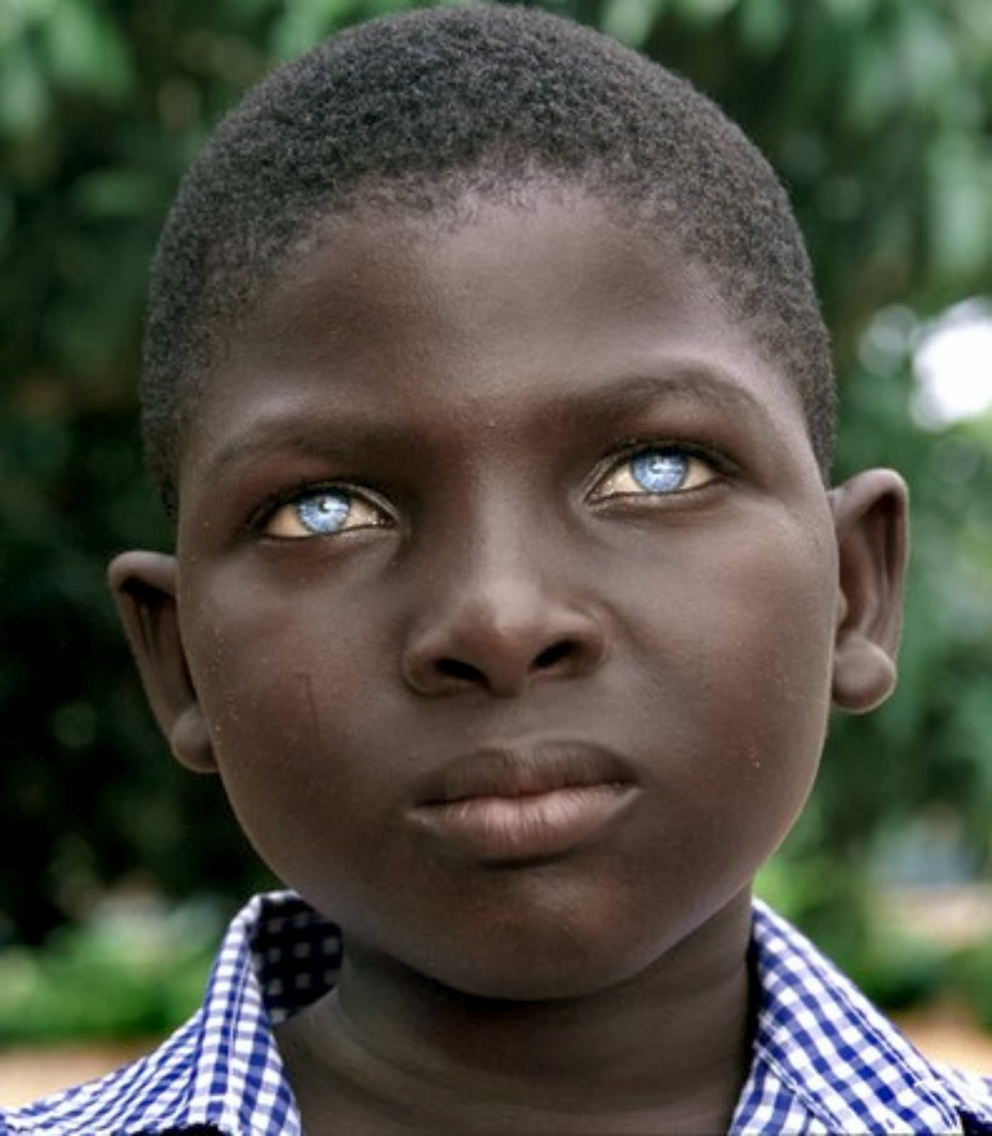 Beautyisintheeyesofme Waardenburg Syndrome