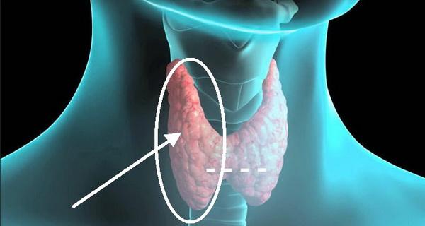 tiroida se poate trata natural