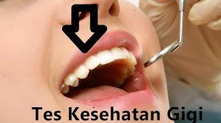 tips supaya lolos tes kesehatan atau medical check up gigi