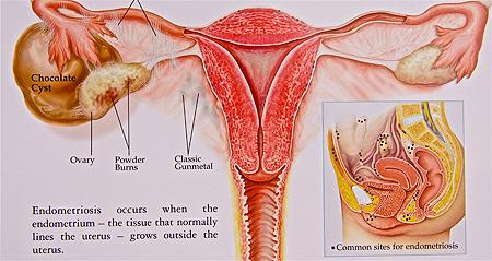 Obat Herbal Untuk Kista Endometriosis