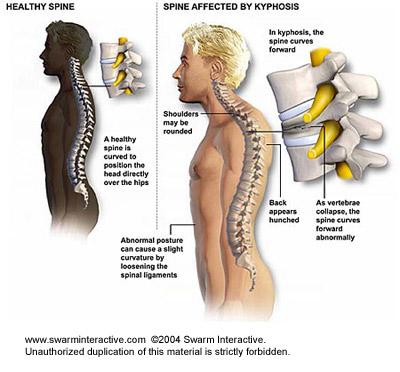 térdízület kezelés feszített ligamentumának törése