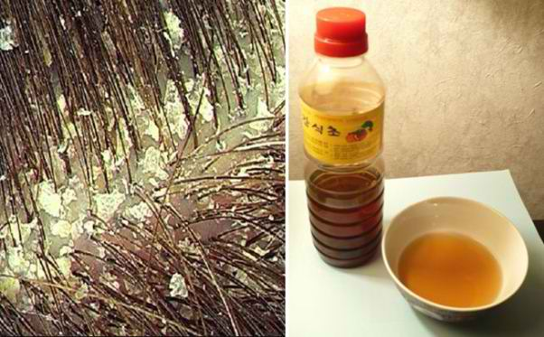 How To Eliminate Dandruff Naturally and PERMANENTLY!