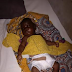 PHOTO see boy that step mother cut off his gental undergoes surgery