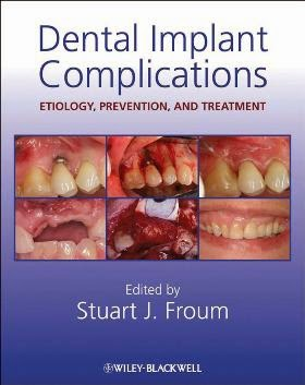 Dental Implant Complications : Etiology,Prevention and Treatment - Stuart J. Froum