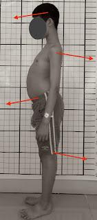 駝背治療, 駝背矯正, 姿勢體態矯正