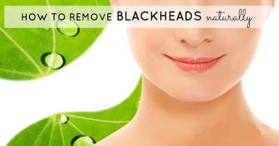 Remove Blackheads Naturally!