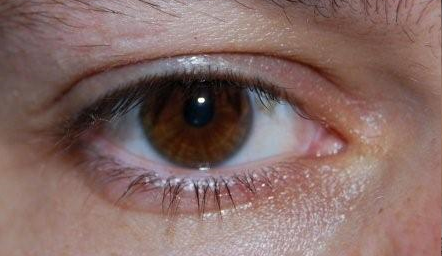 Consejo | Emociones y síntomas: El hígado y la vista son esclavos de la ira.