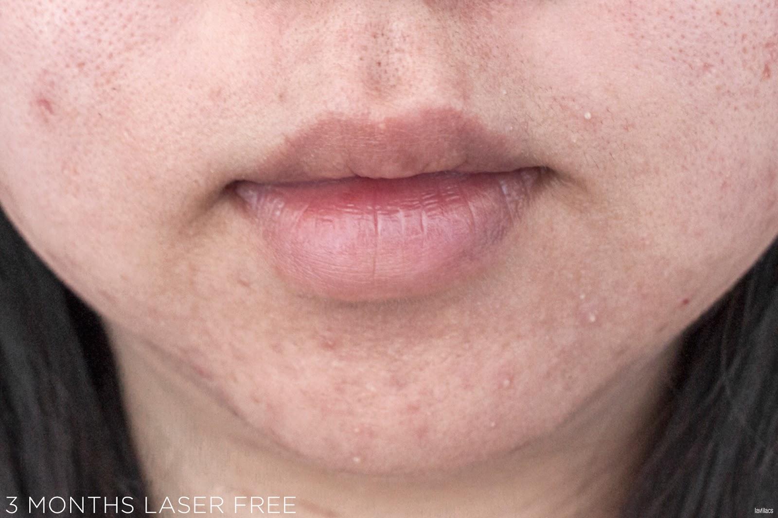 tria Hair Removal Laser Facial Hair 3 Months Laser Free Closeup