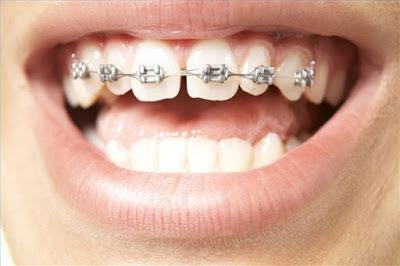 Kỹ thuật niềng răng thưa thẩm mỹ