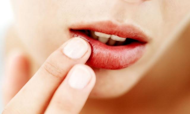 Cara Mengatasi Bibir Kering dan Pecah-Pecah Dengan Bahan Alami